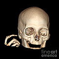 3d Ct Reconstruction Of Head And Hand by Living Art Enterprises