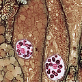 Chlamydia Infection Tem by David M Phillips