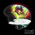 Glioblastoma Brain Tumour, Dti Mri Scan by Sherbrooke Connectivity Imaging Lab