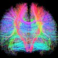 White Matter Fibres Of The Human Brain by Alfred Pasieka/science Photo Library