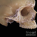 Anatomy Of The Skull by Science Picture Co