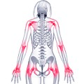 Joint Pain by Pixologicstudio/science Photo Library