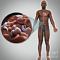 Sleeping Sickness Infection by Science Picture Co