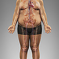 Obesity by Science Picture Co