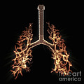 Bronchial Branches by Science Picture Co