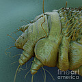 Scabies Mite by Science Picture Co