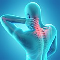 Human Neck Pain by Sebastian Kaulitzki/science Photo Library