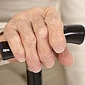 Arthritic Hand And Walking Stick by Science Photo Library