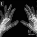 Arthritic Hands, X-ray by Science Photo Library