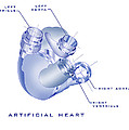 Artificial Heart by James Christopher Hill