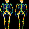 Bone Densitometry Scans Of The Skeletons Of Twins by Dr. Nigel Morrison/science Photo Library