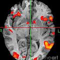 Brain Activity During Language Task, 2 by Living Art Enterprises