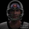 Brain Injury by Science Picture Co