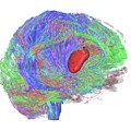 Brain Tumour by Sherbrooke Connectivity Imaging Lab/science Photo Library
