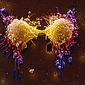 Cancer Cell Division by SPL and Photo Researchers