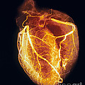 Colored Arteriogram Of Arteries Of Healthy Heart by Spl