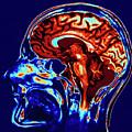 Coloured Mri Scan Of Brain In Sagittal Se by Geoff Tompkinson