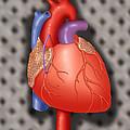 Coronary Vein Graft by Monica Schroeder / Science Source