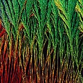 Cortisol Crystals, Light Micrograph by Science Photo Library