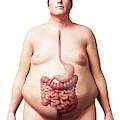 Digestive System Of Obese Man by Sebastian Kaulitzki