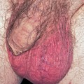 Epididymo-orchitis From Self Catheterisation by Dr P. Marazzi/science Photo Library