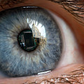 Eye Implant Restoring Sight by Pascal Goetgheluck/science Photo Library
