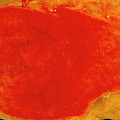 Gallbladder Inflammation by Cnri/science Photo Library
