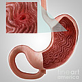 Gastric Ulcer by Science Picture Co