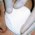 Gloved Fingers Apply Dressing To Patient's Eye by Garry Watson/science Photo Library