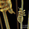 Head Lice by Science Picture Co