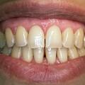 Healthy Adult Teeth by Dr Armen Taranyan / Science Photo Library