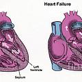 Healthy Heart Vs. Heart Failure by Spencer Sutton