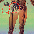 Hip Replacement by Dennis D Potokar