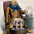 Hydrotherapy, Cure Of Common Cold, 1833 by Wellcome Images