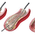 Insertion Of Stent Into Atherosclerotic by TriFocal Communications