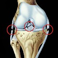 Knee Ligament Injuries by John Bavosi