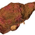 Liver Cirrhosis by Kateryna Kon/science Photo Library