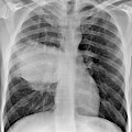 Lung Cancer by Du Cane Medical Imaging Ltd