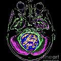 Medulloblastoma, Mri by Living Art Enterprises