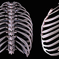Multiple View Of The Rib Cage by Science Picture Co