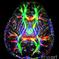 Normal Brain Diffusion Tractography by Living Art Enterprises