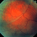 Retinoschisis Of The Eye's Retina by Science Stock Photography/science Photo Library