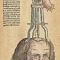 Skull Operation, 1517 by Granger