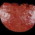 Spleen Cancer, Gross Specimen by Science Photo Library
