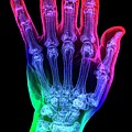 Thumb Fracture by K H Fung/science Photo Library