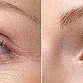 Womans Eye With And Without Wrinkles by Oleksiy Maksymenko