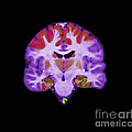 Brain Areas Affected By Alzheimers by Medical Body Scans