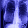Chest X-ray Of Female by Ted Kinsman