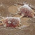 Dividing Cancer Cell, Sem by Steve Gschmeissner