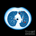 Emphysema On Ct Chest by Medical Body Scans
